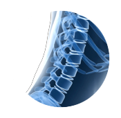 Spine X-Ray